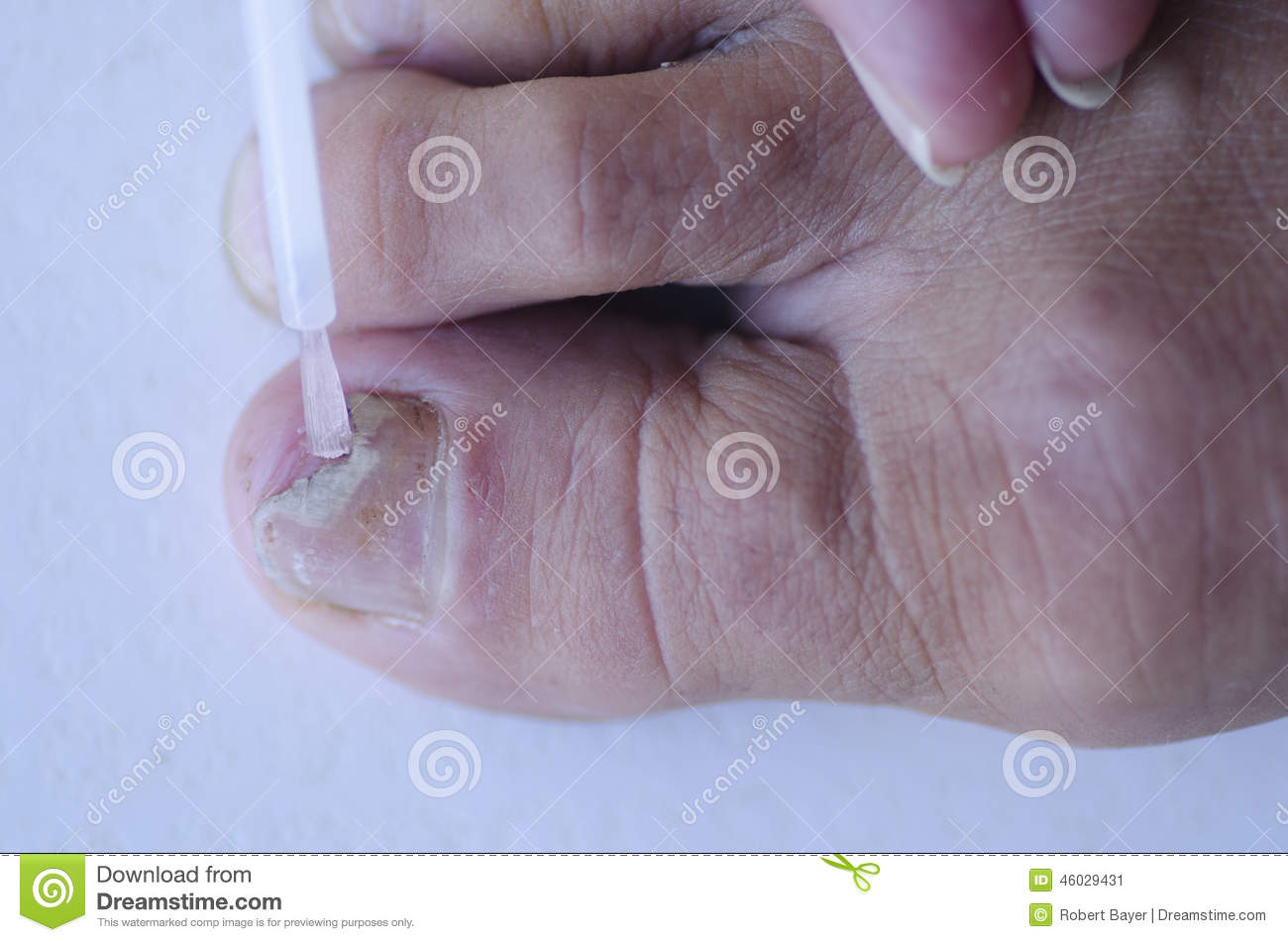 Fungus Infection At Toenail Medical Treatment Stock Image - Image of ...
