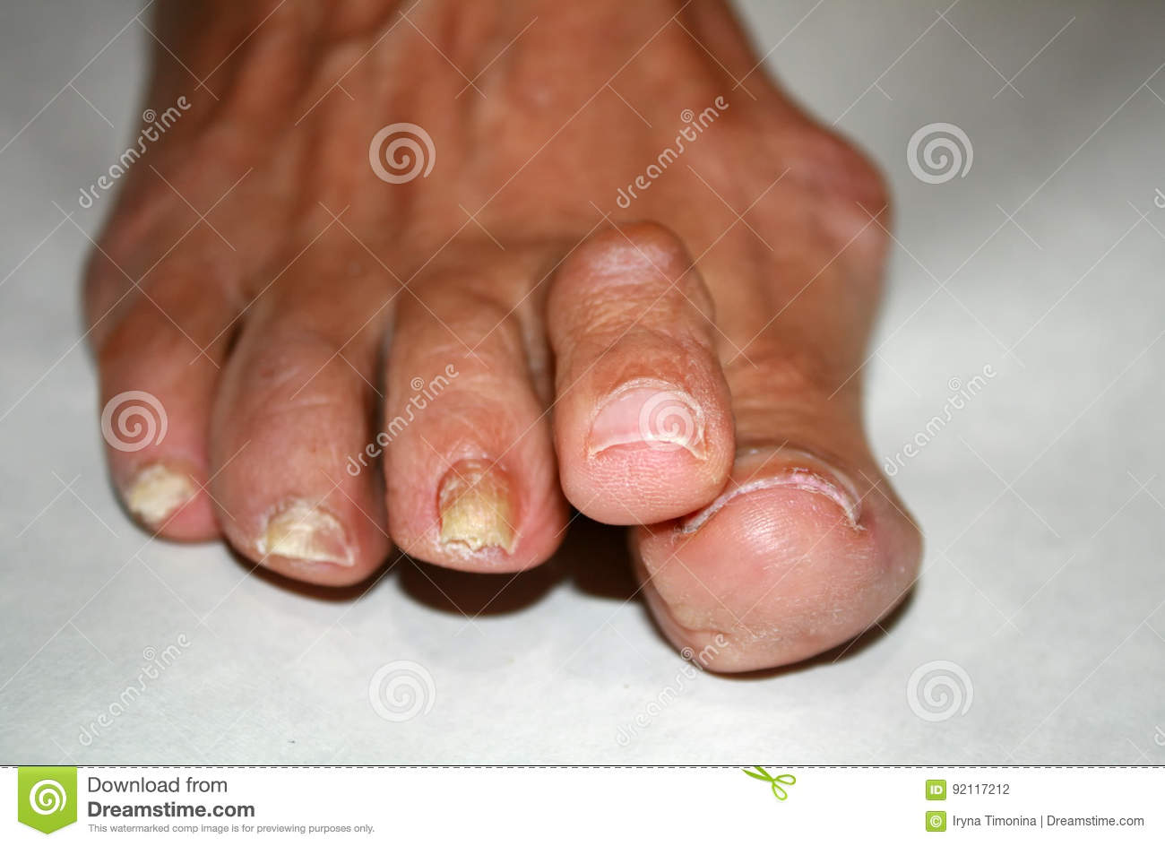 Fungus On The Nail. Twisted Fingers On The Foot With Calluses. Bone ...