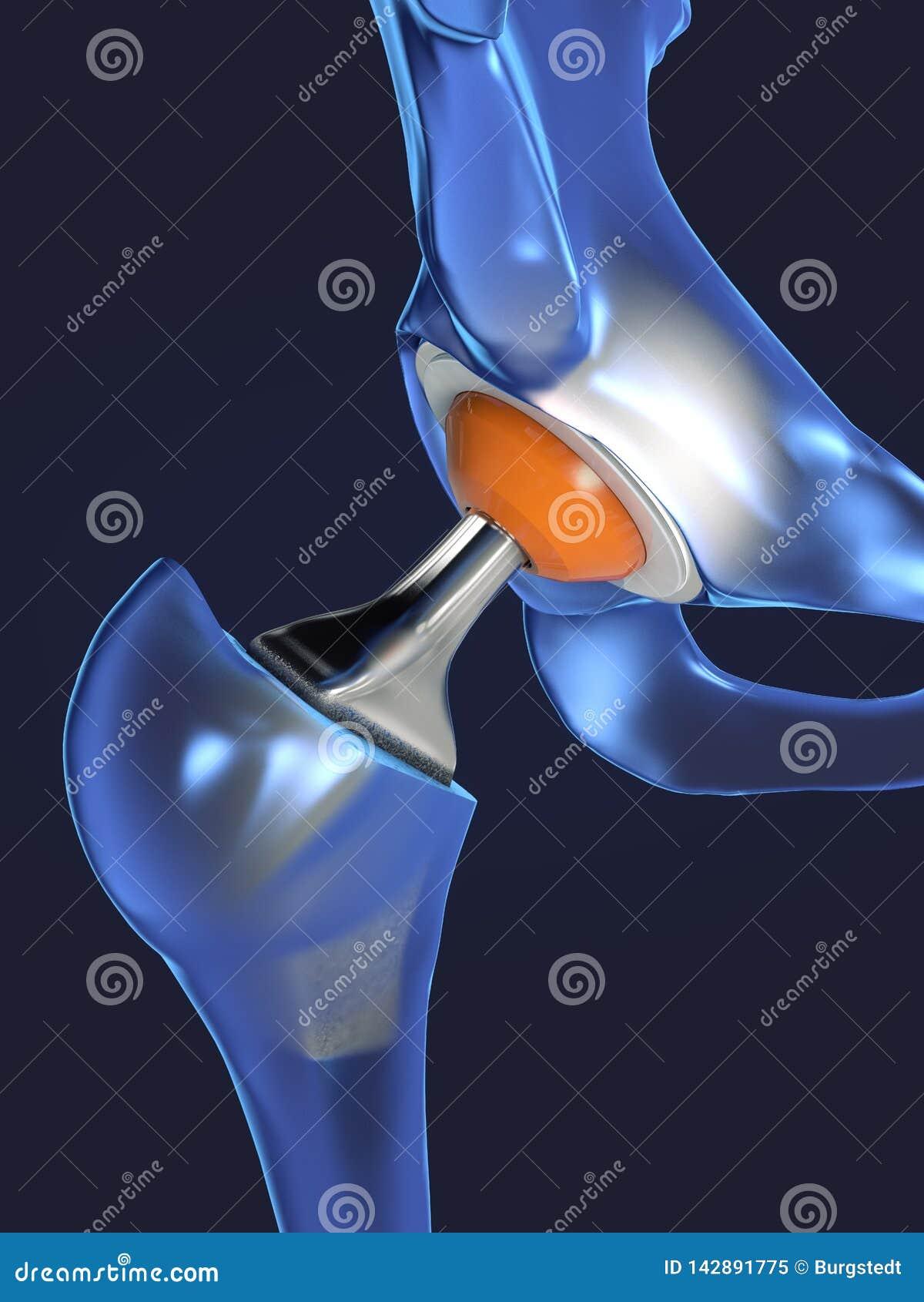 Funktion av en höftledimplantat eller en höftprotes i frontal sikt