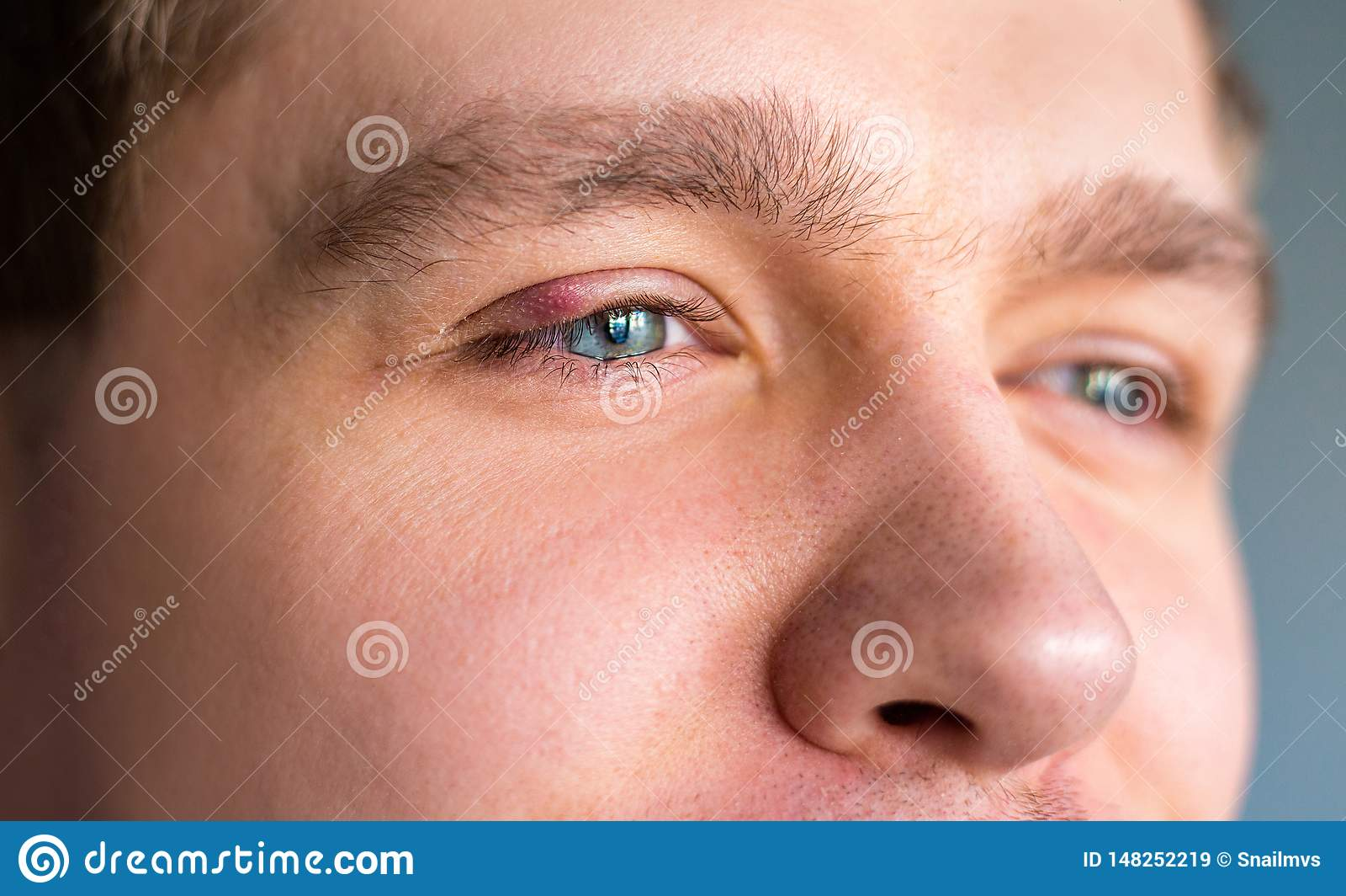 Fuoco selettivo sul coperchio superiore rosso gonfiato e doloroso dell occhio con l inizio dell infezione del porcile dovuto la g