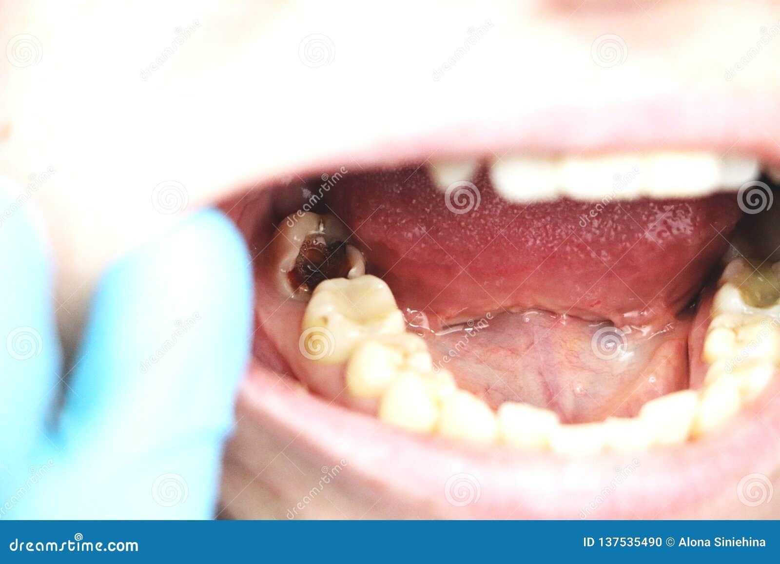 Głębokie próchnicy, otwarci kanały, czyści kanały Pacjent przy stomatolon na wstępie, periodontitis traktowanie