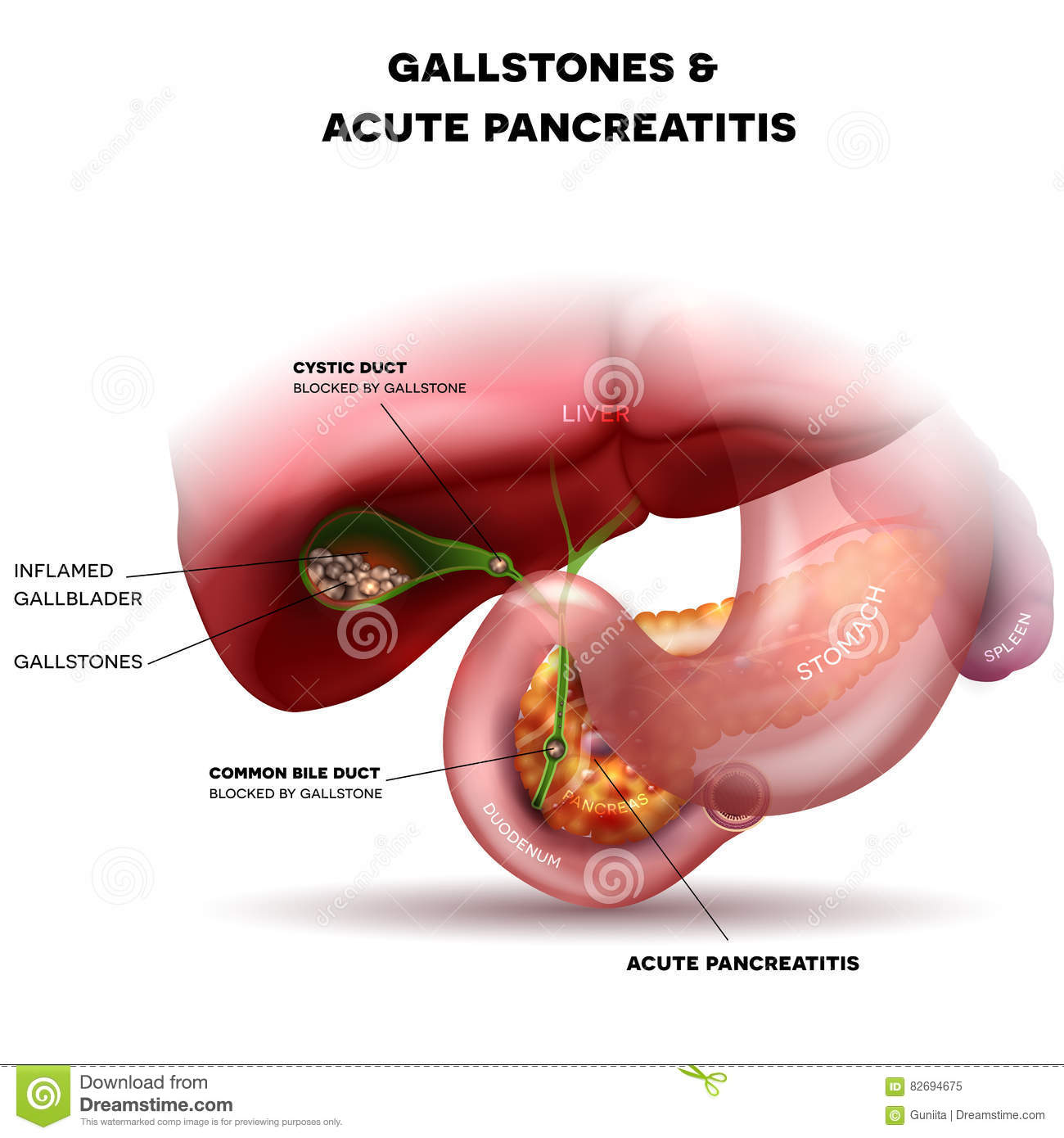 Gallstones And Acute Pancreatitis Stock Vector - Illustration of ...