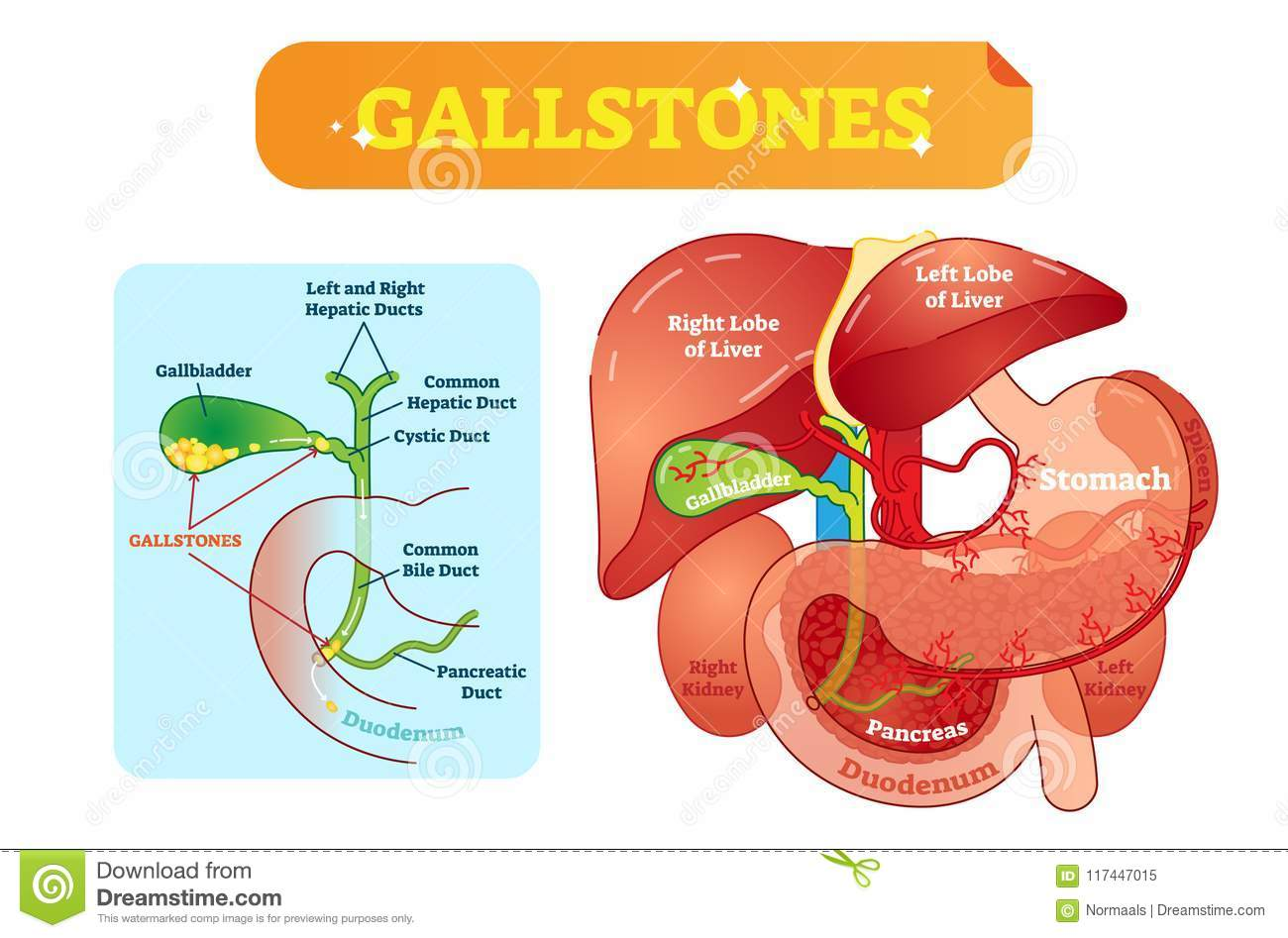 Gallstones Anatomical Cross Section Vector Illustration Diagram With ...