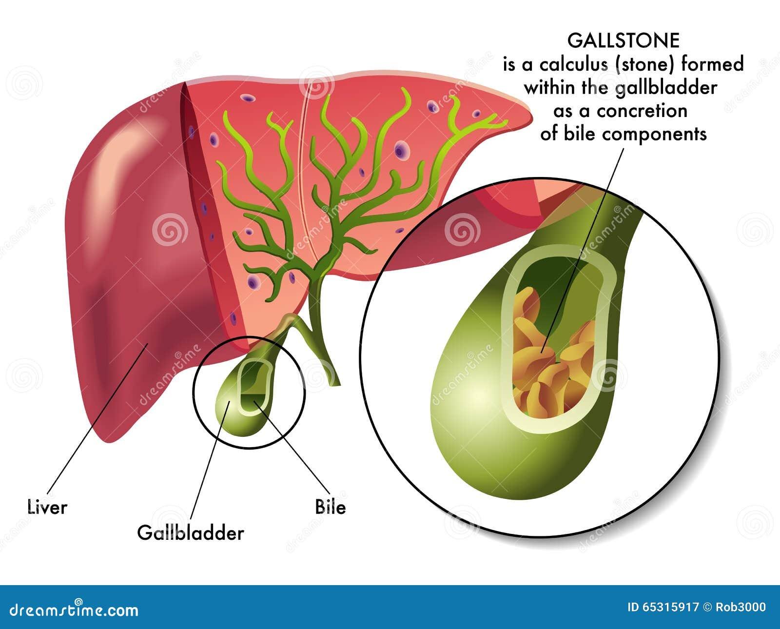 Gallstones Stock Vector - Image: 65315917