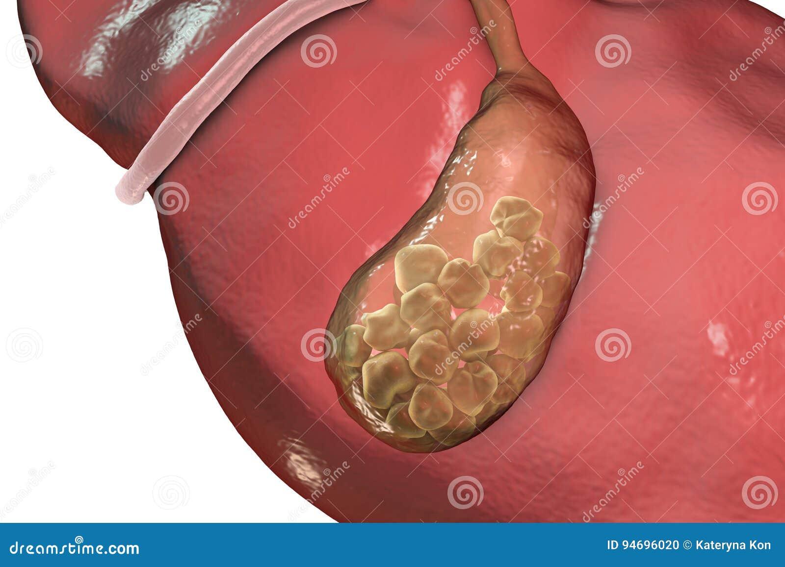 debris in gallbladder - 720×480