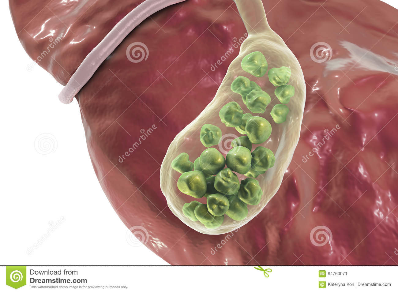 Gallstones Illustration Showing Bottom View Of Liver And