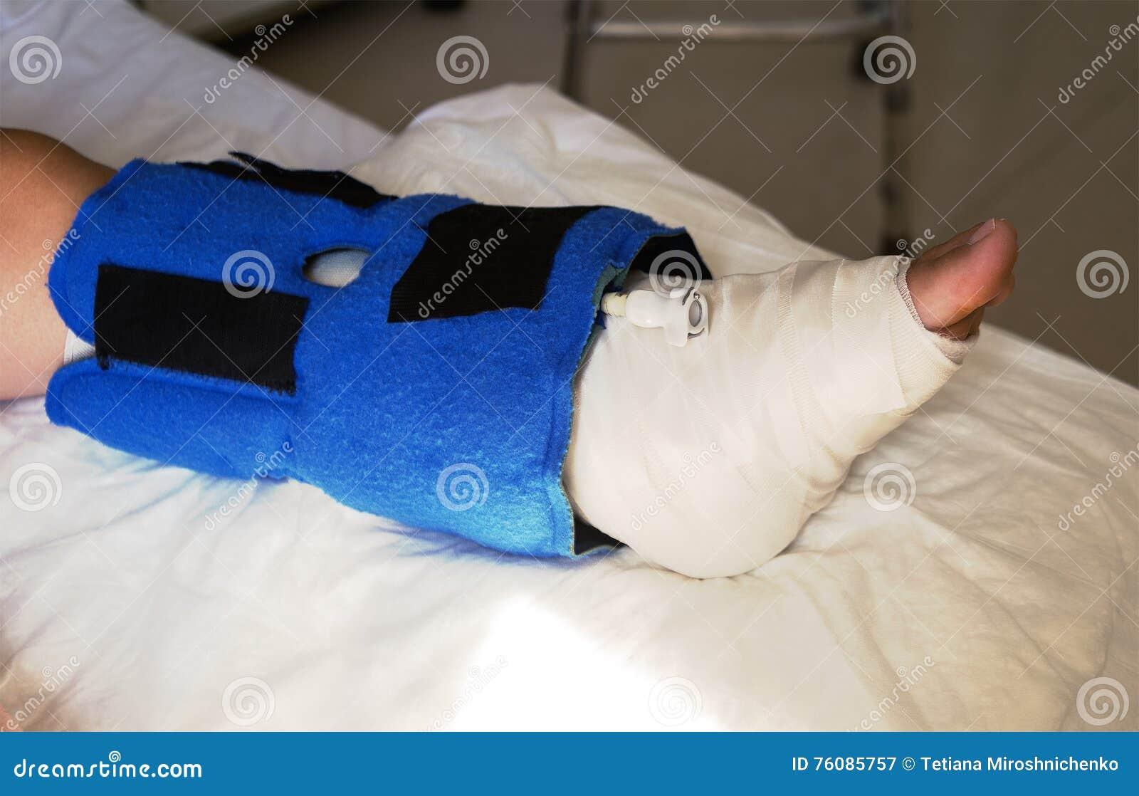 Gamba rotta e bendato