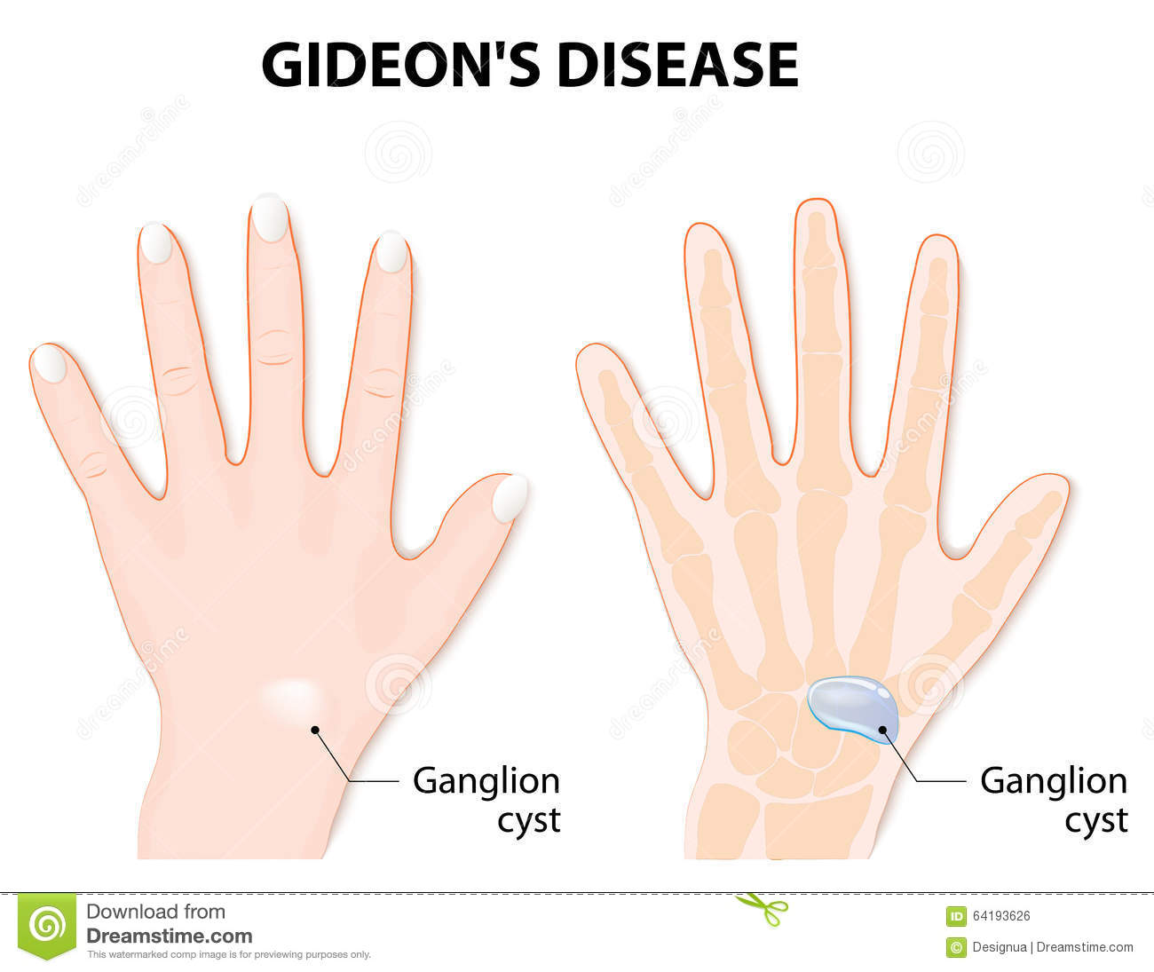 Ganglion Cartoons, Illustrations & Vector Stock Images