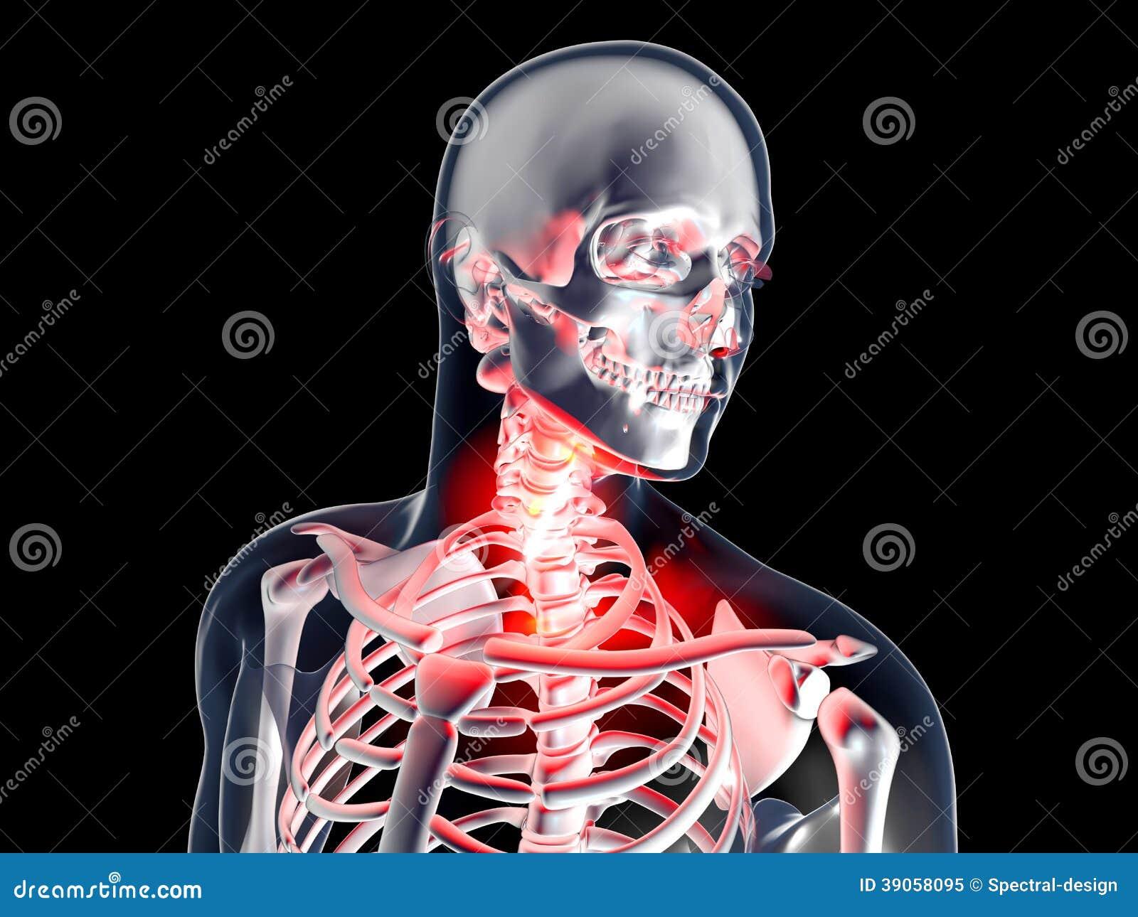 Hermosa Anatomía De La Garganta Dolorida Elaboración - Anatomía de ...
