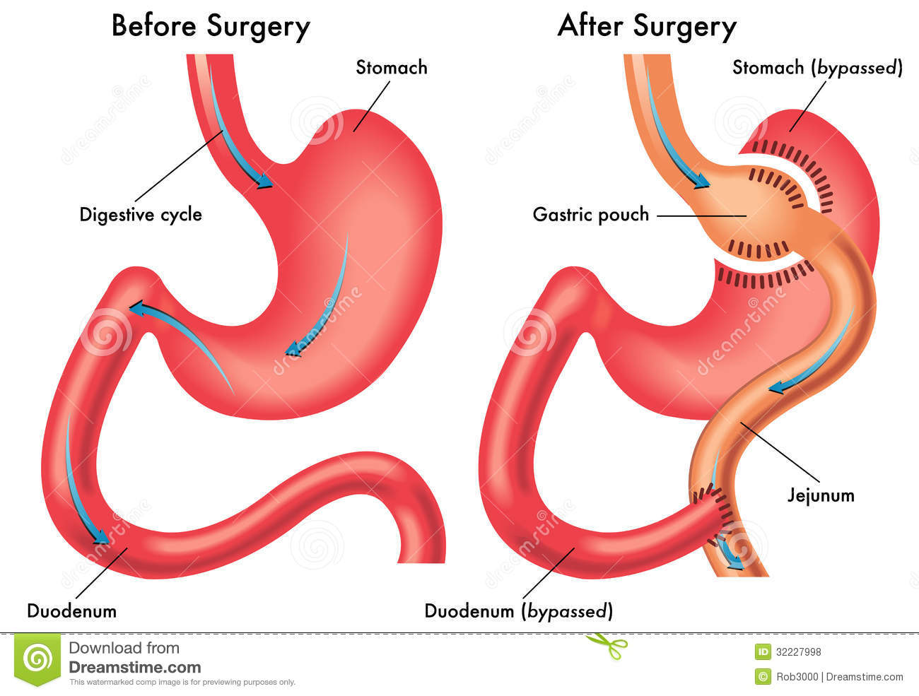 gastric bypass Gastric bypass definition is - a surgical bypass operation that typically involves  reducing the size of the stomach and reconnecting the smaller.