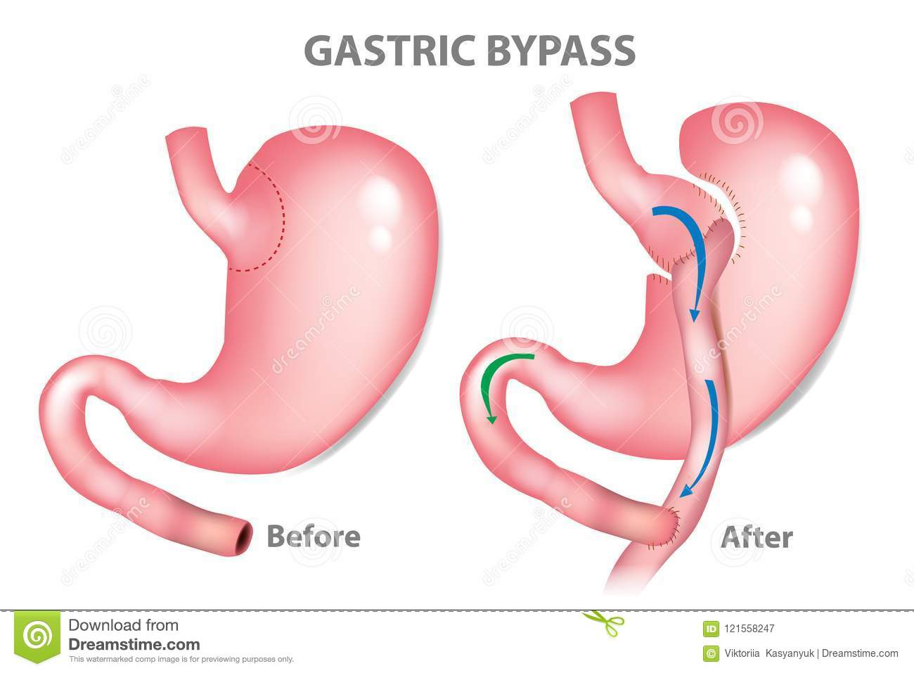 Gastric bypass surgery stock vector. Illustration of bariatric ...