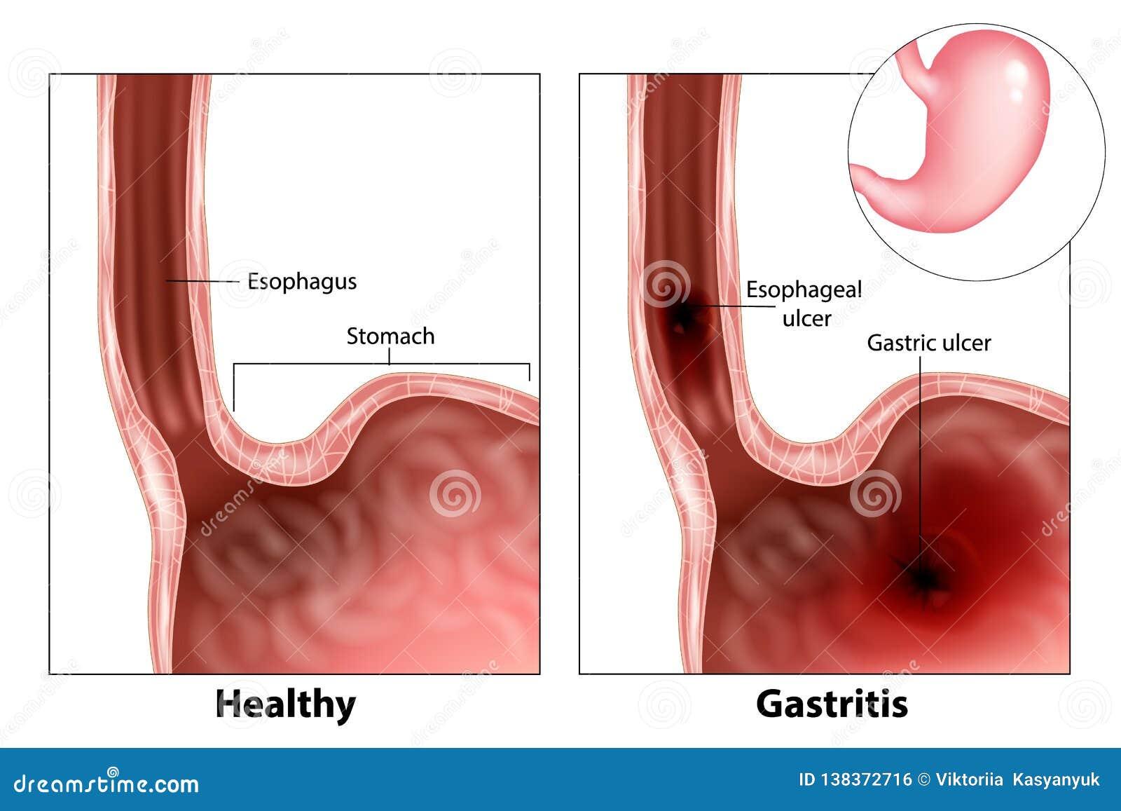Gastritis i Przełykowy wrzód