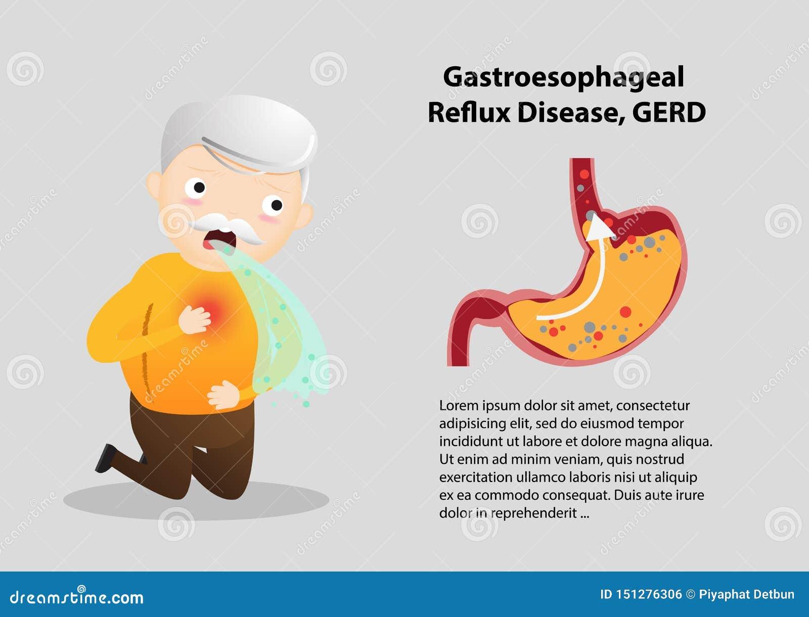 Gastro-Esophageal Reflux Disease GERD