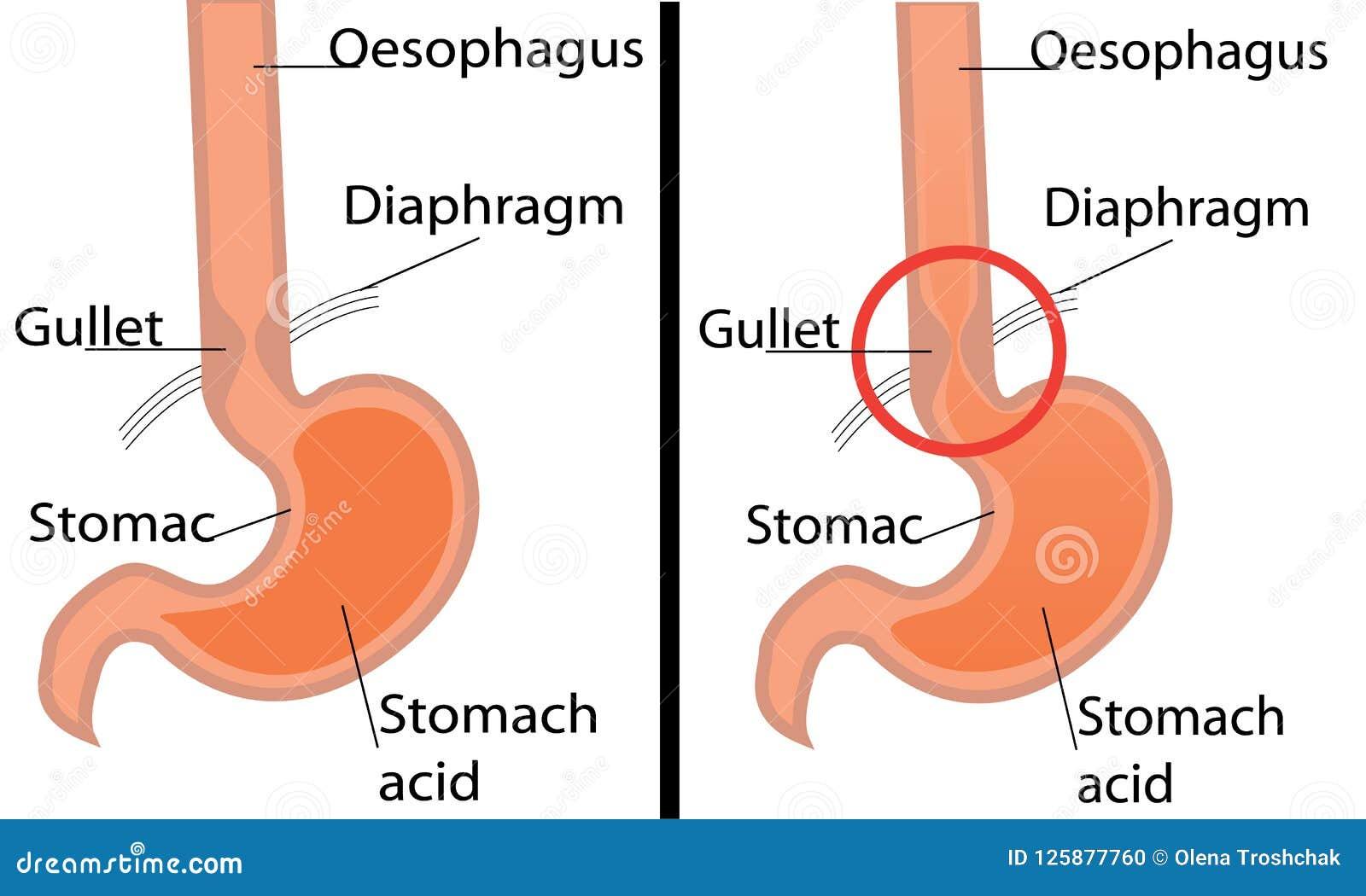 gastroesophageal reflux desease diagram healthy and gerd stomach Gerd Acid Reflux gastroesophageal reflux desease diagram healthy and gerd stomach vector illustration