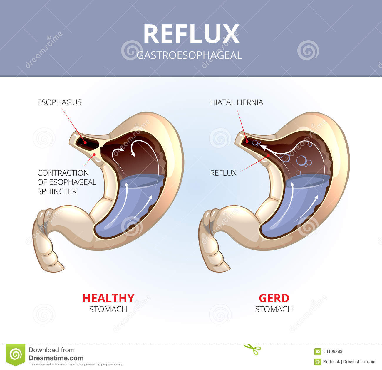 gastro esophageal reflux disease Gerd stands for gastro-esophageal reflux disease or acid reflux and is a common condition when the acid produced in the stomach leaks out and seeps back into the esophagus or food pipe the.