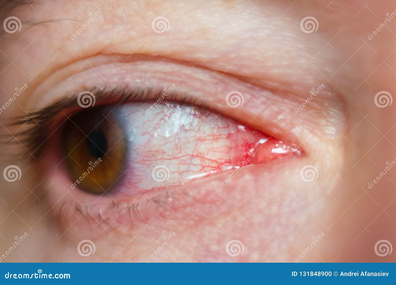 Geïrriteerde de close-up besmette rode bloeddoorlopen ogen, bindvliesontsteking