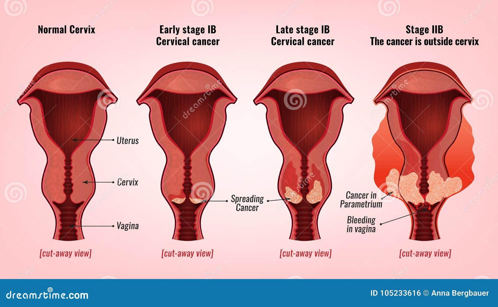 Gebärmutterhalskrebsbild