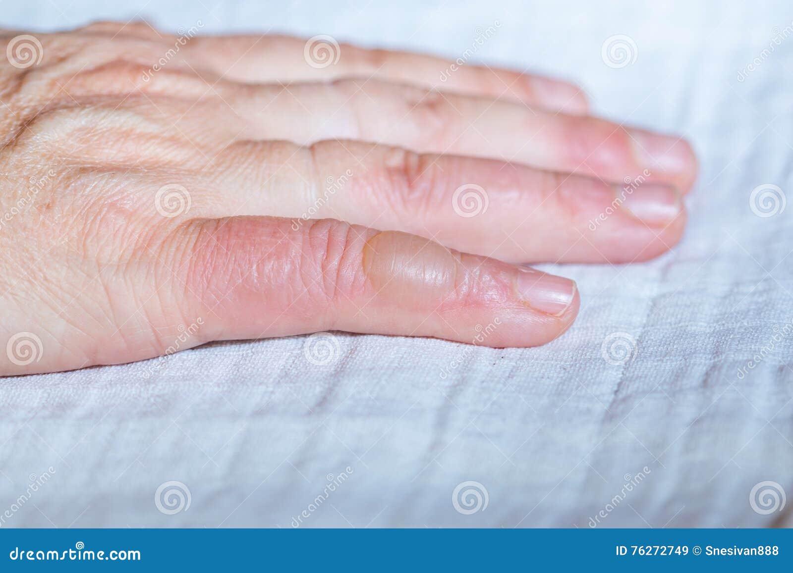 Gebrande hand Blaar op uw vinger