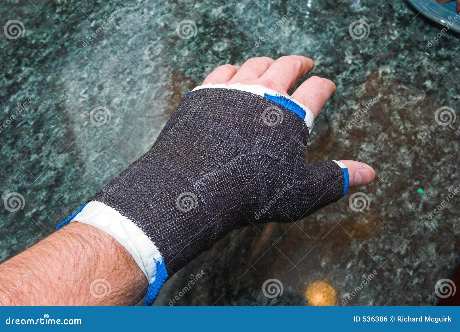 Einen gebrochenen Finger behandeln wikiHow