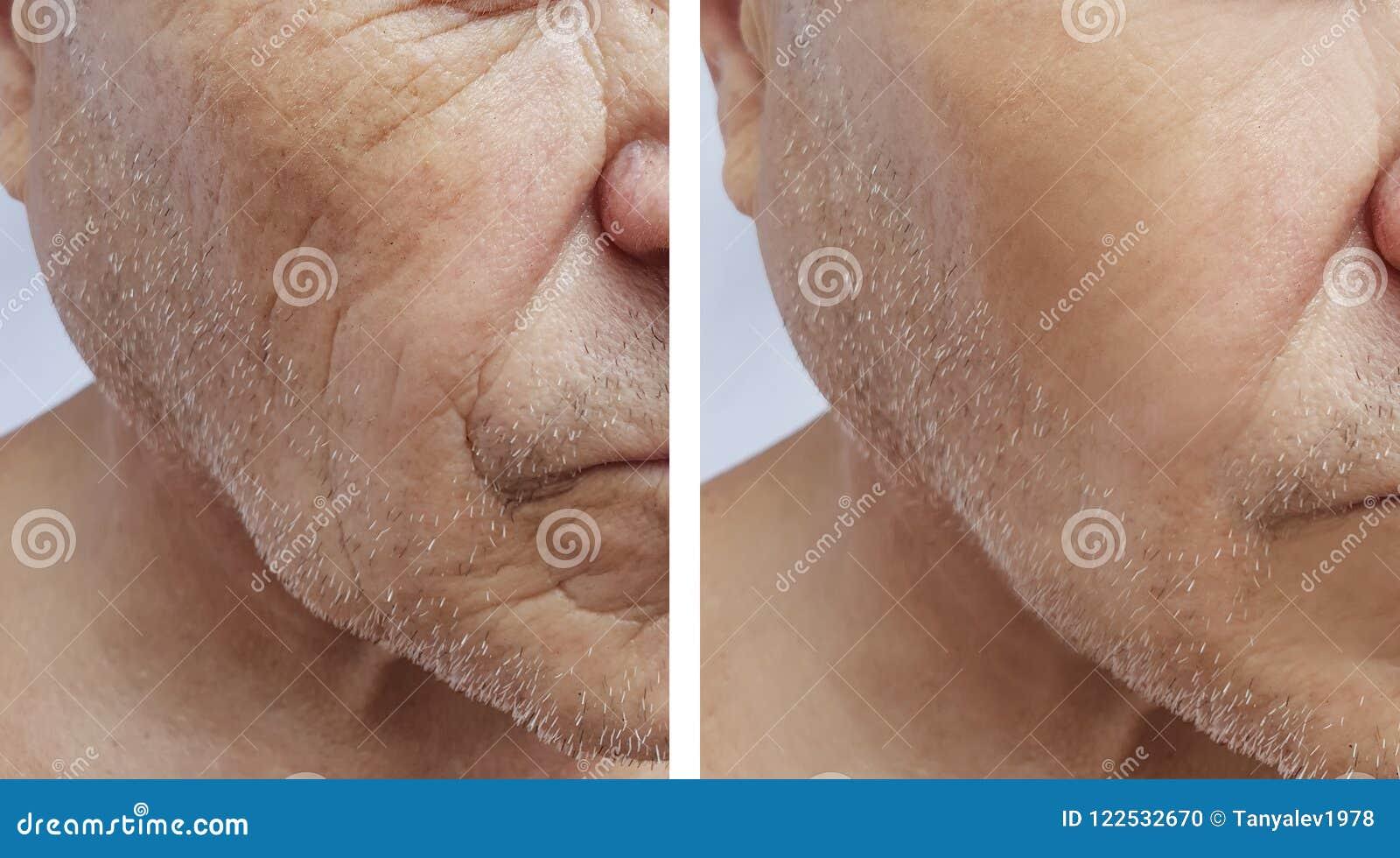 Geduldige Stirn des älteren im Gesichtmannes knittert Effektmedizin-Therapiegesicht der Einspritzung antiaging vor und nach Verfa