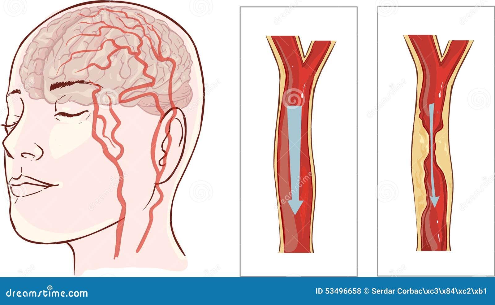 Gehirnanschlag Zerebrale Infarktbildung Vektor Abbildung ...