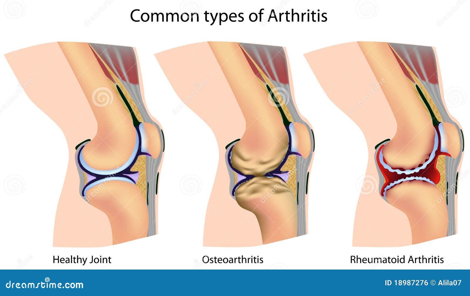 Geläufige Typen von Arthritis