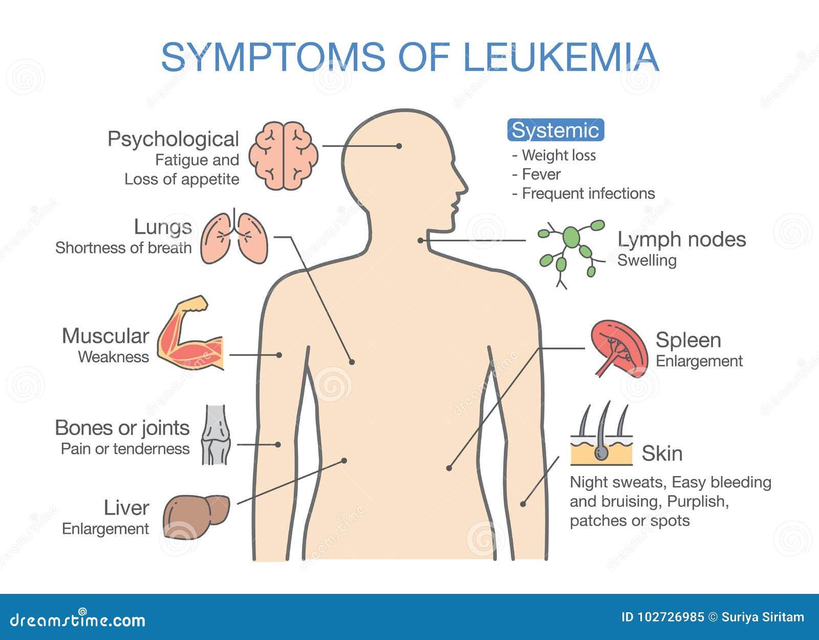 Gemeenschappelijke Symptomen En Tekens Van Leukemie Vector