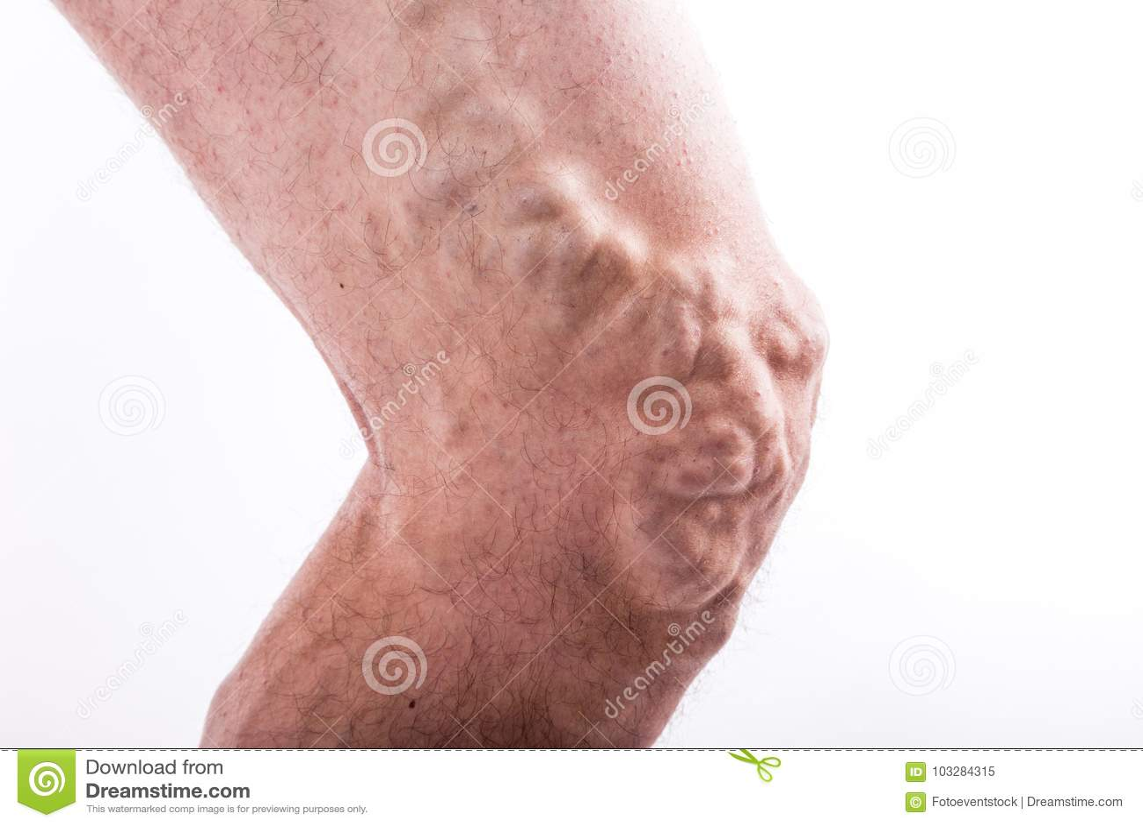 Flebitis tratamiento ivan de por