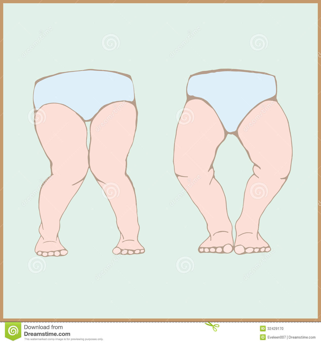 Genu varum, genu valgum - a physical legs deformity, bowing of the leg ...
