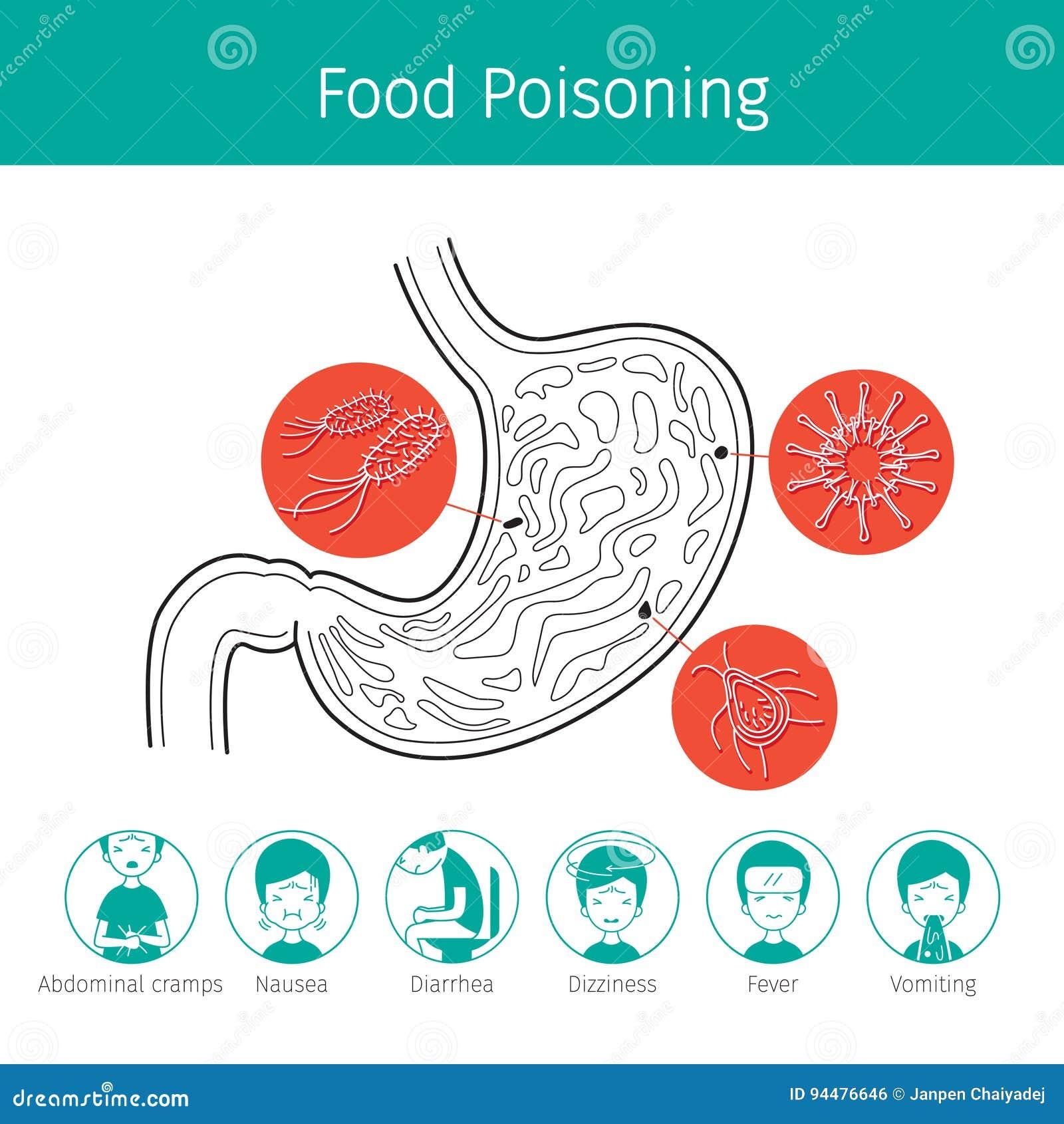perdita di peso media da intossicazione alimentare