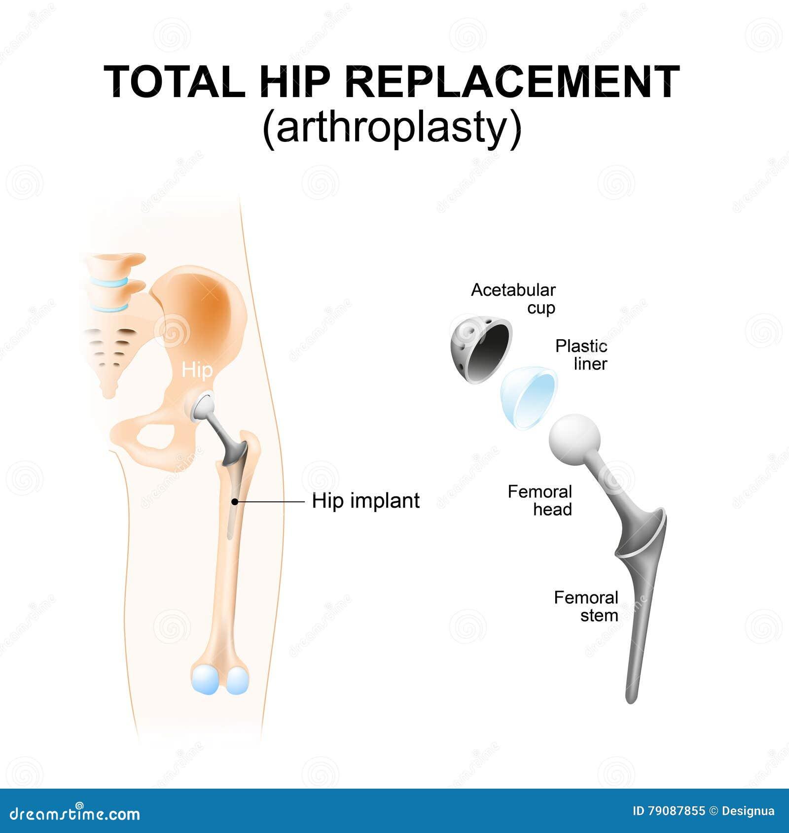 Gesamthüfte Ersatz oder Arthroplasty