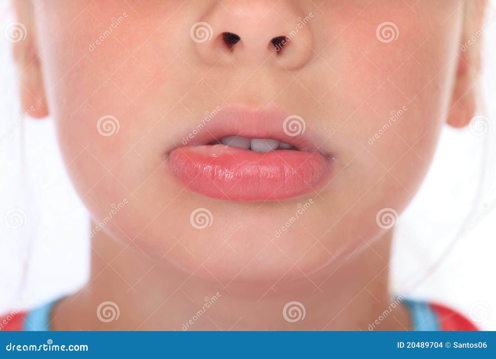 Geschwollene Lippe Nach Wespestich Stockfoto - Bild von