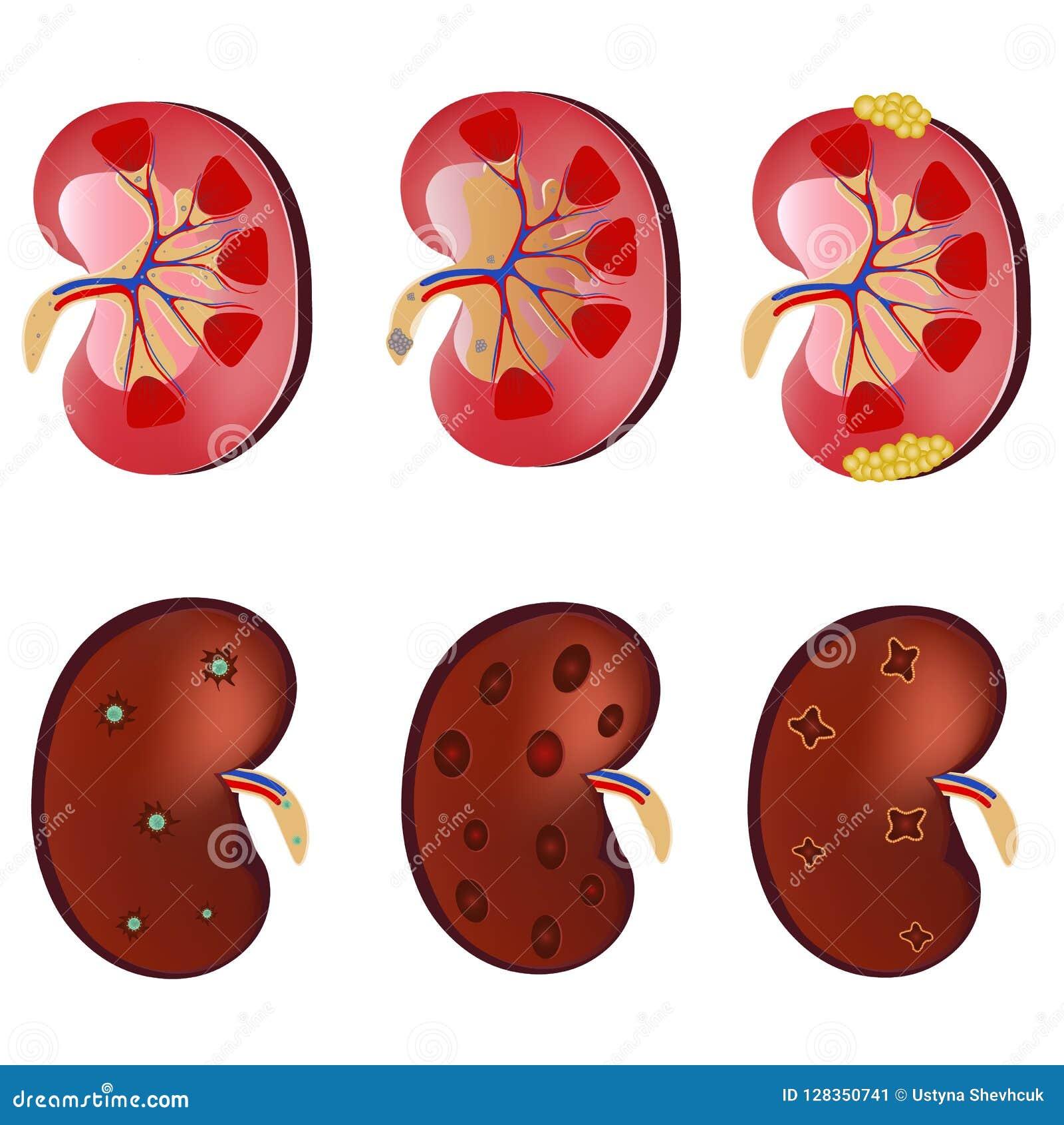 Niereninfektion