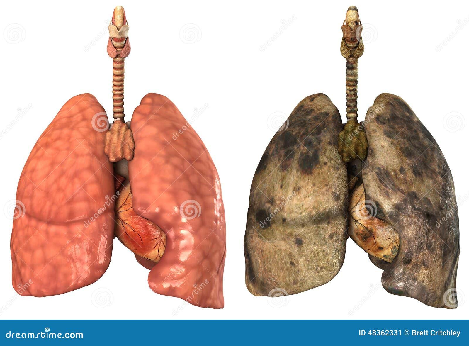 Gesunde Und Kranke Menschliche Lungen Stock Abbildung - Illustration ...