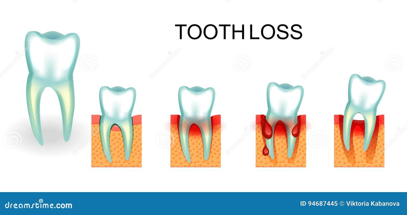 Gesunder Und Kranker Zahn Blutenzahnfleisch Zahnverlust Vektor ...