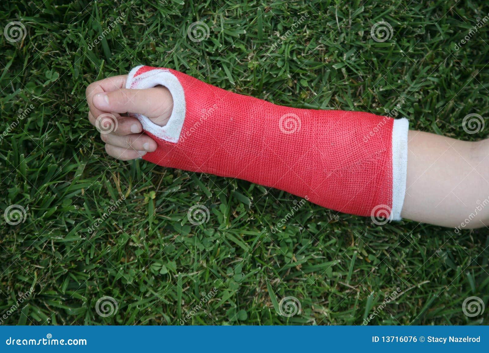 Getto rosso del braccio e della mano della manopola