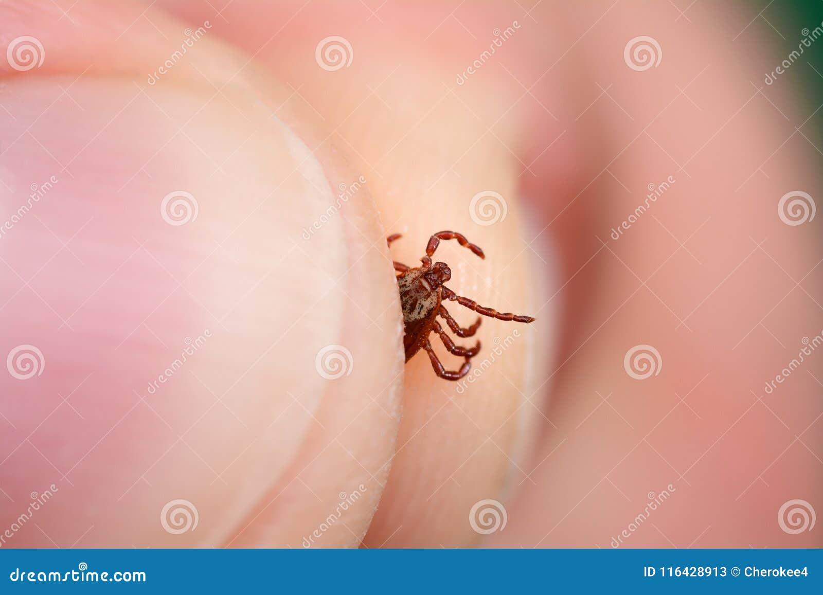 Gevaar van tikbeet Toont close-upmijt in de hand