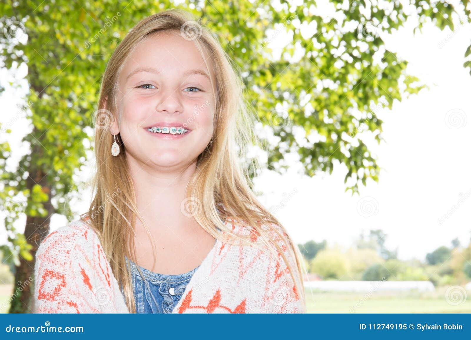 Gezicht van een mooi meisje van het tienerblonde met tandsteunen