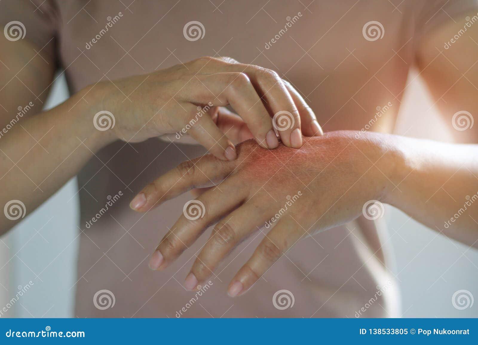 Gezondheidszorg en Medisch Concept Wijfje die de jeuk op haar hand krassen, oorzaak van het jeuken van huidziekten