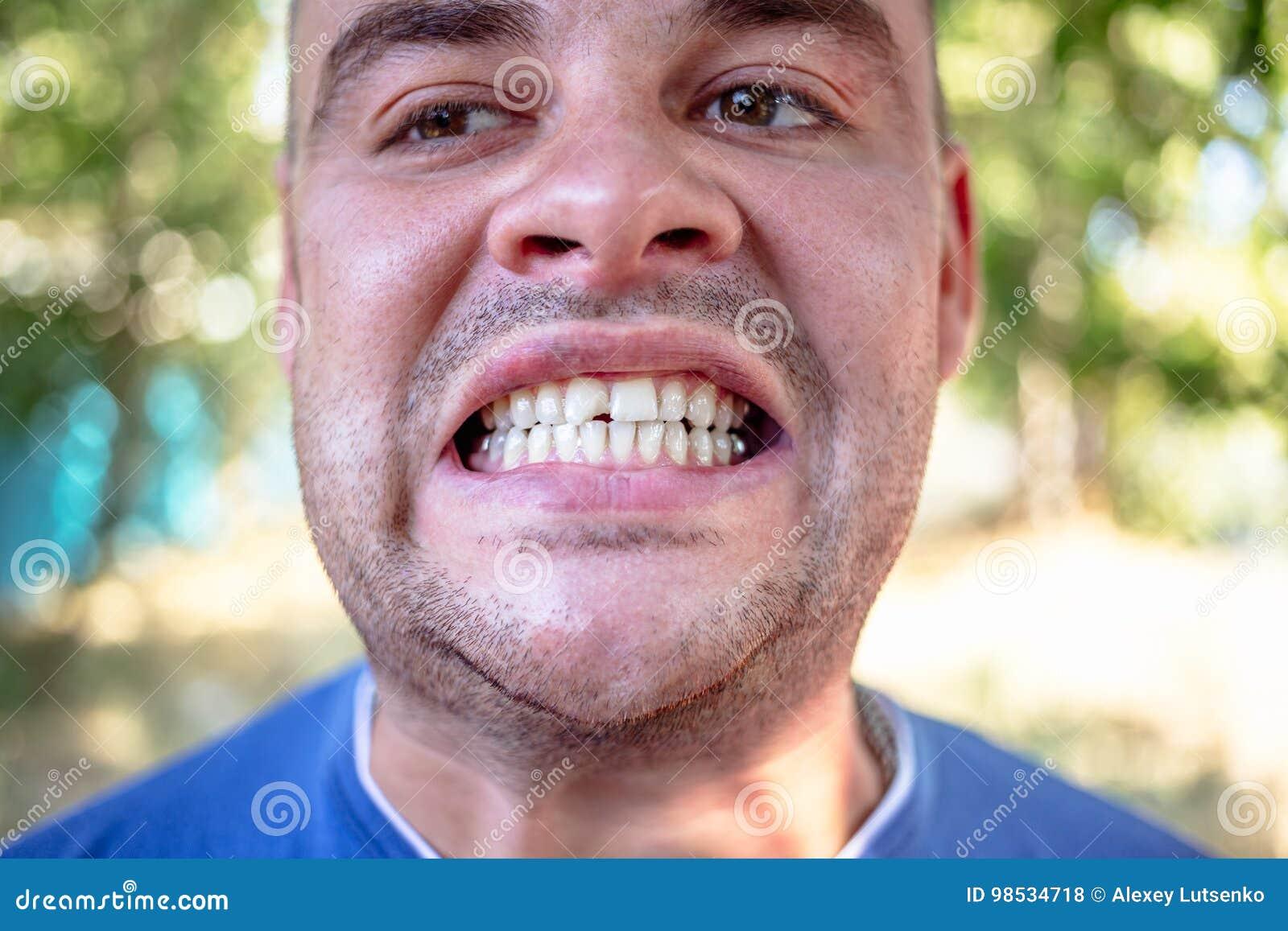 Giovane con un dente scheggiato