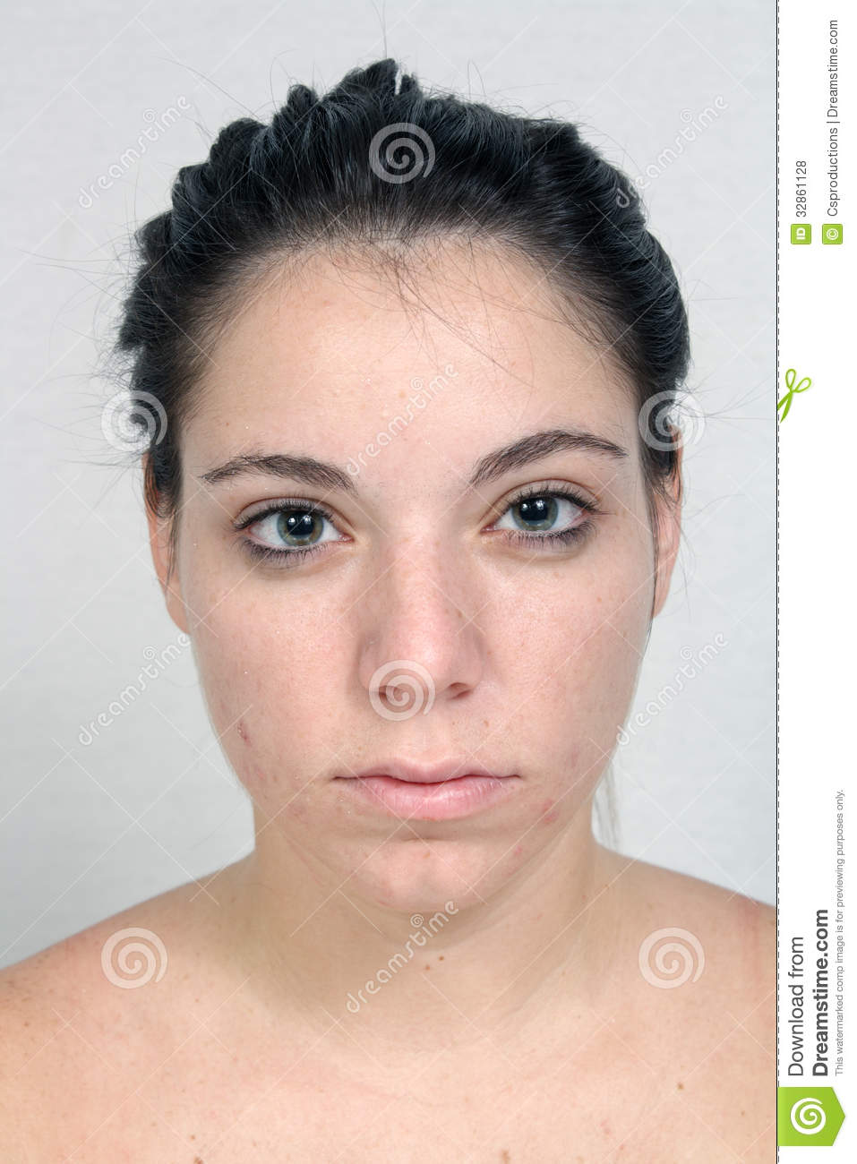 Girl With Acne (1) Royalty Free Stock Photos - Image: 32861128