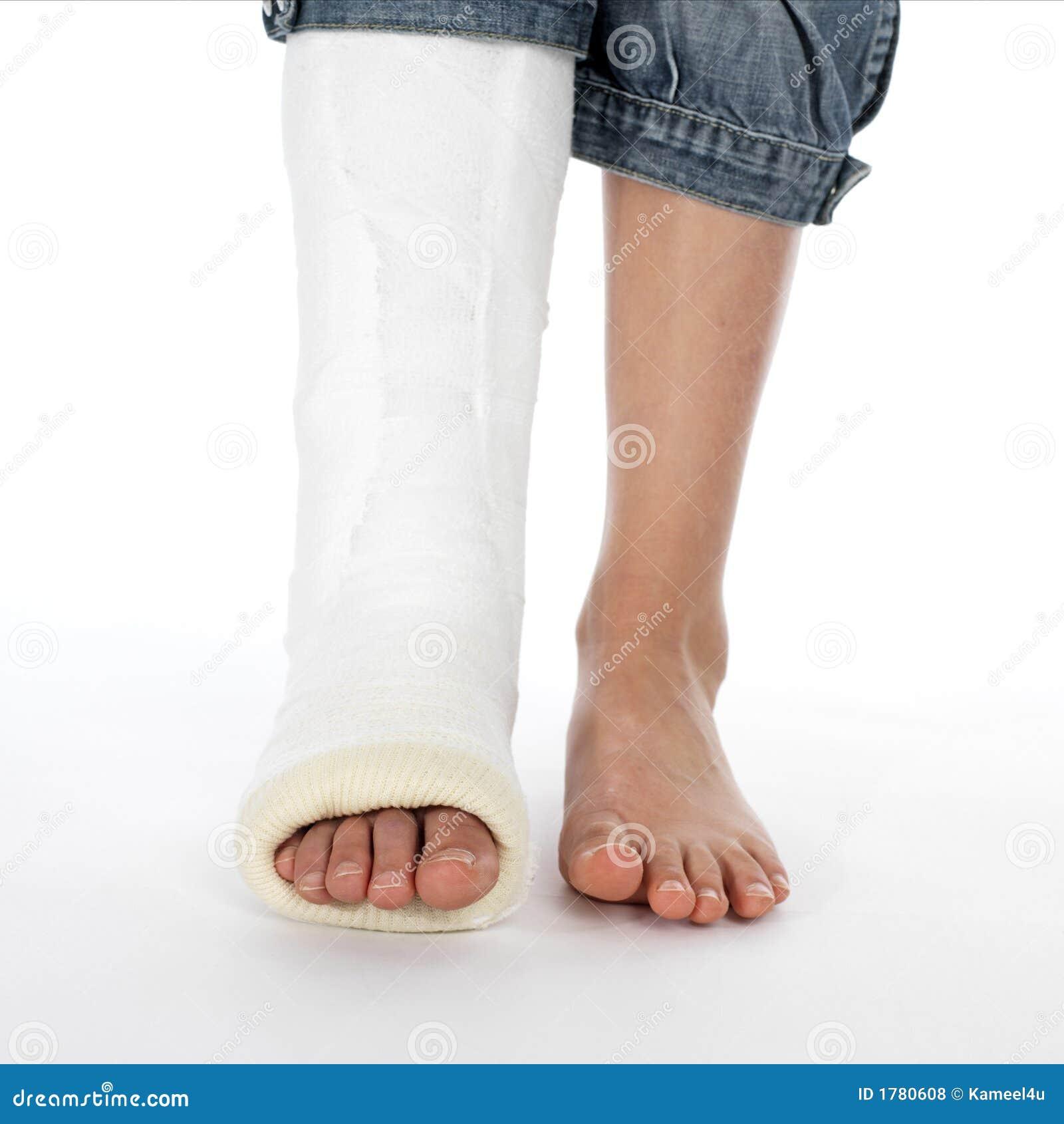 girl with a broken leg royalty free stock photos image broken leg clipart free broken ankle clipart