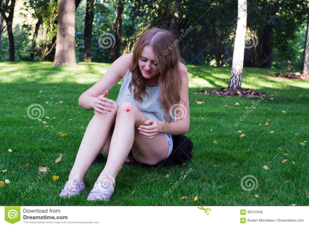 Girl with a bruise on her knee