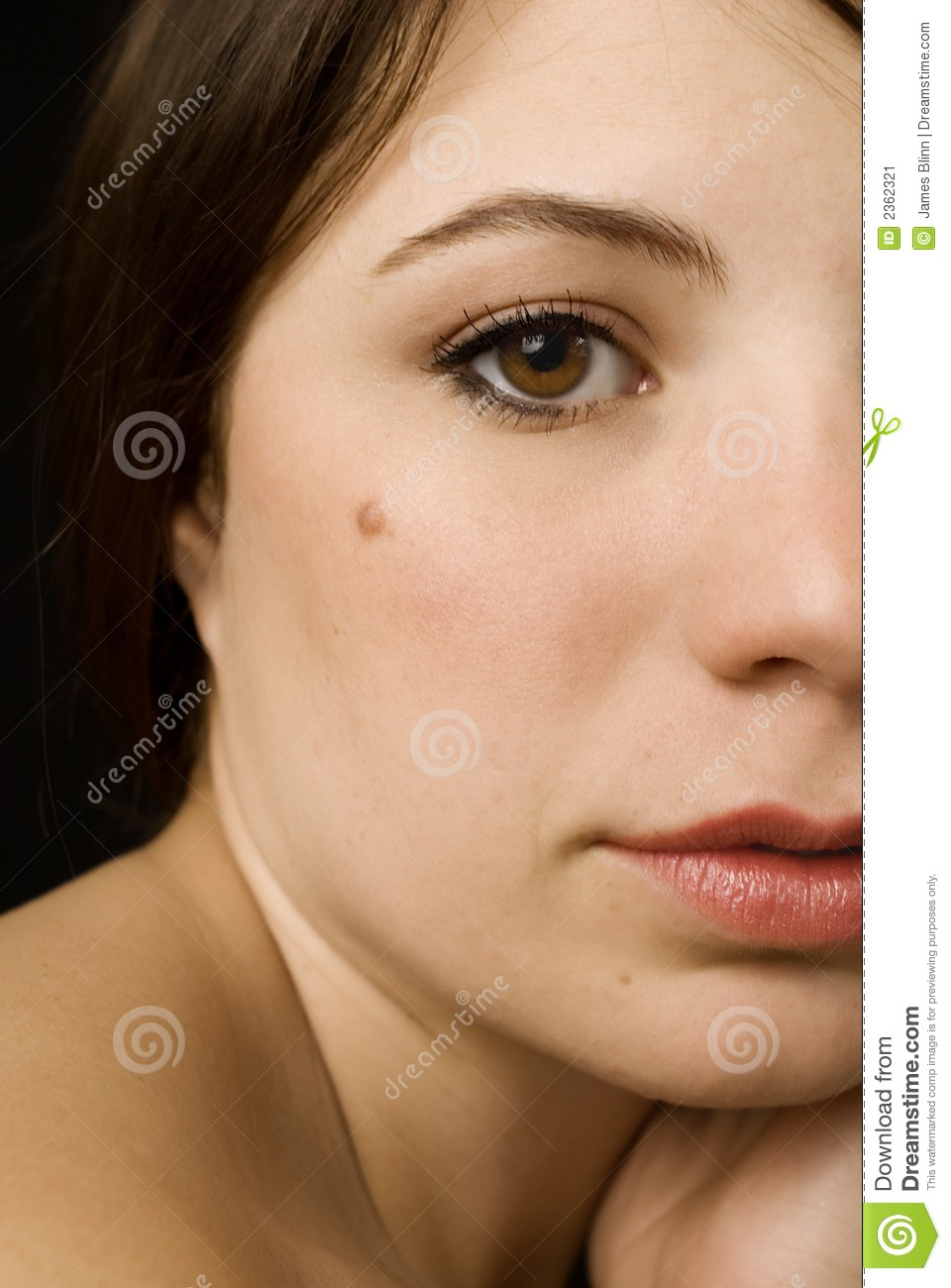 girl with a mole stock image