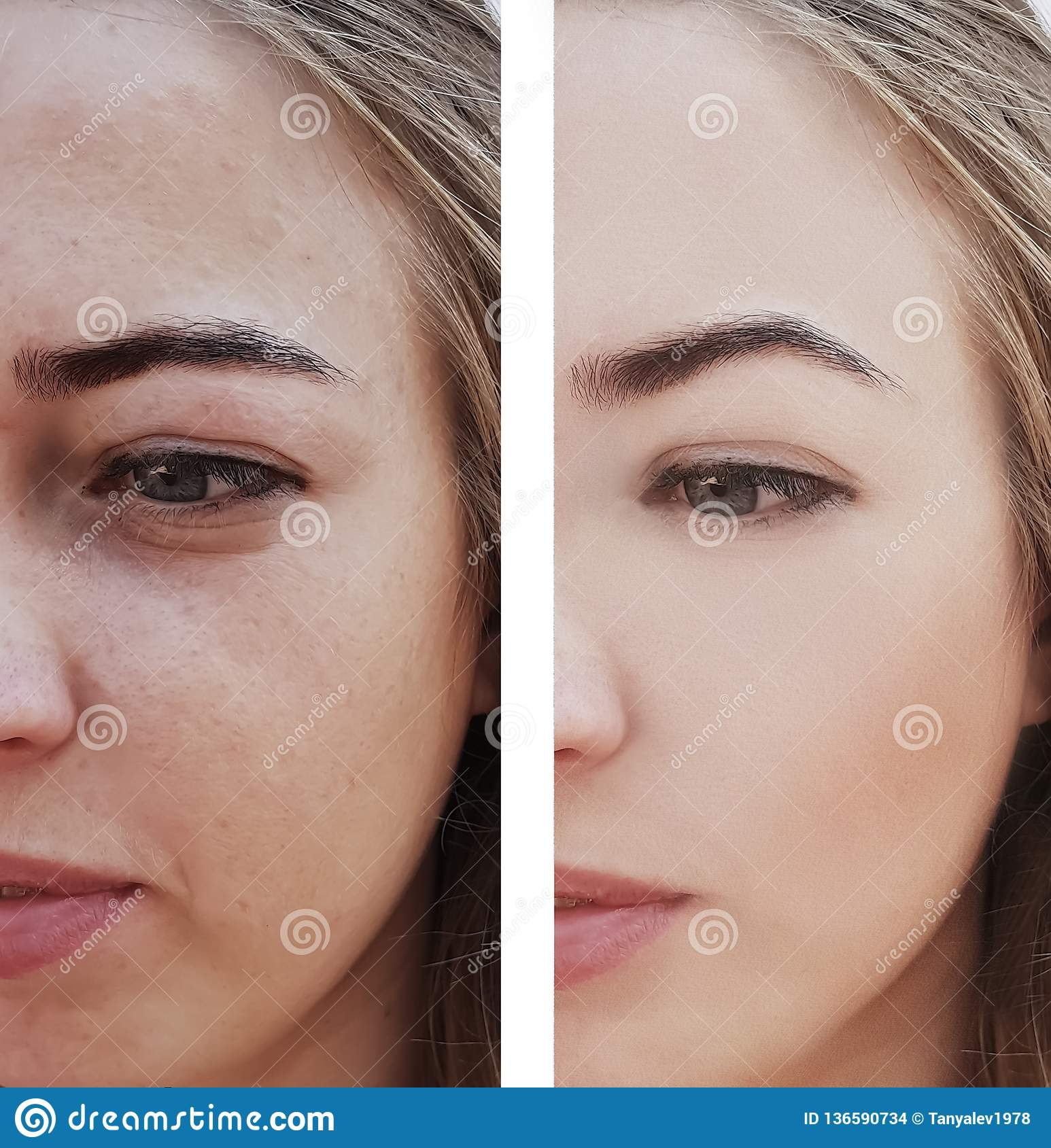 Girl Wrinkles Eyes Before And After Removal Procedures, Bags