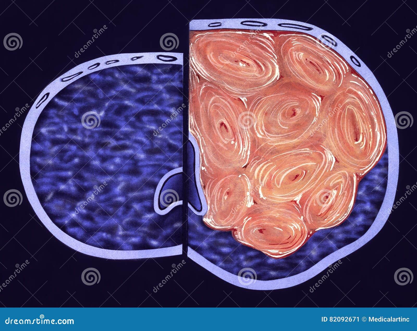 eyackulación con próstata agrandada