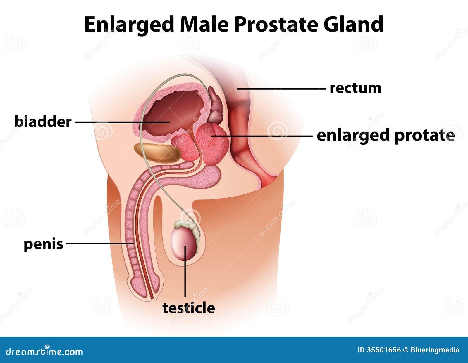 cáncer de próstata agrandado