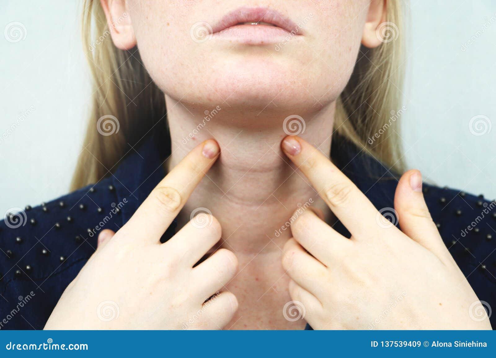 Glândula de tiroide Retrato do close up da mulher loura nova doente bonito na parte superior branca que tem a garganta inflamada,