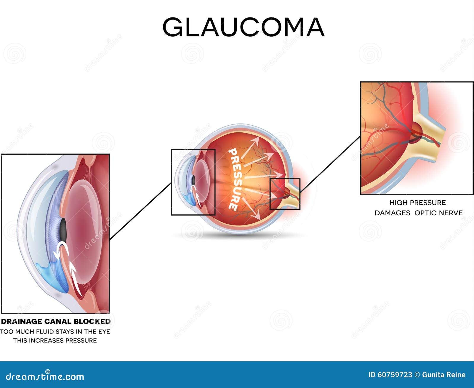 Glaucoma stock vector. Illustration of drainage, eyes - 60759723