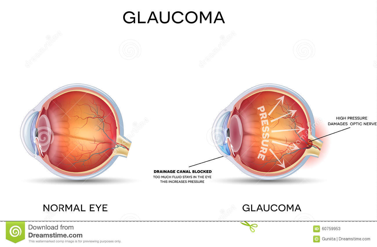 Glaucoma Detailed Anatomy Healthy Eye on Eye Anatomy Diagram